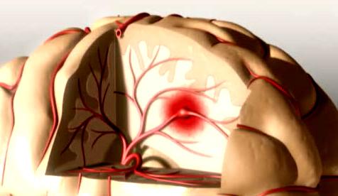 nghẽn mạch ở tĩnh mạch sâu