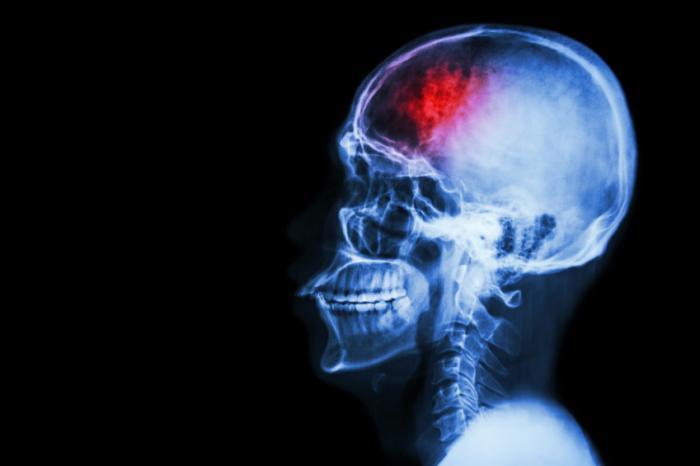 huyết quản não do thiếu huyết cấp tính