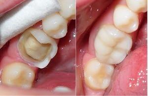 Những trường hợp nên trám răng và những điều mà bạn cần lưu ý