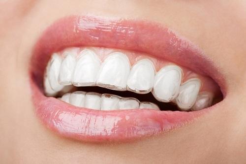 Sử dụng răng bằng sứ