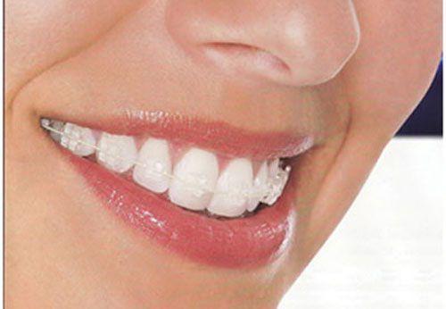 Làm răng bằng sứ