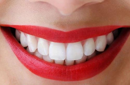 nhu cầu tẩy trắng răng
