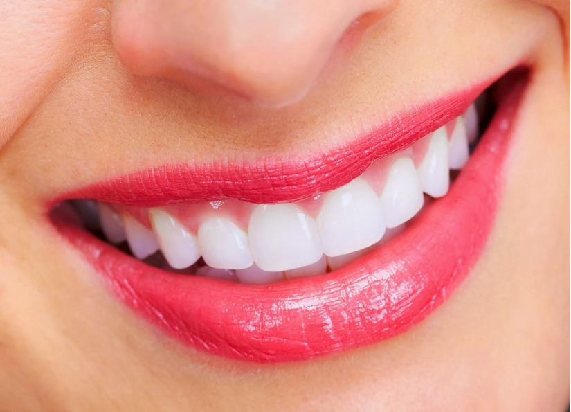 Giữ được màu răng sau khi tẩy trắng răng