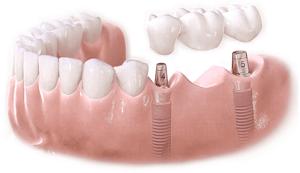 Trồng răng giả là như thế nào?