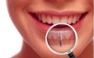 Cách chăm sóc và bảo dưỡng răng giả tốt nhất cho bạn