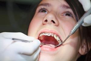 Điều trị chỉnh hình răng mặt là gì?