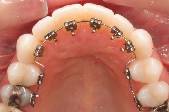 Chỉnh hình răng mặt cố định