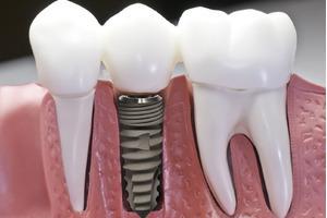 Cấy ghép răng và những người có thể tiến hành cấy ghép răng