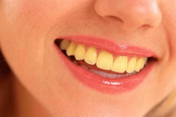 Sậm màu ở răng vĩnh viễn