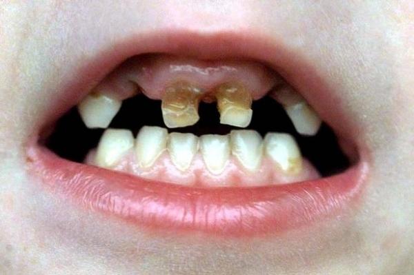 bảo vệ răng cho trẻ