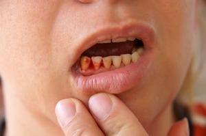 Cách chữa sâu răng và viêm lợi do hỏa nhiệt như thế nào?