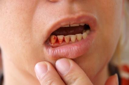 Cách chữa sâu răng và viêm lợi