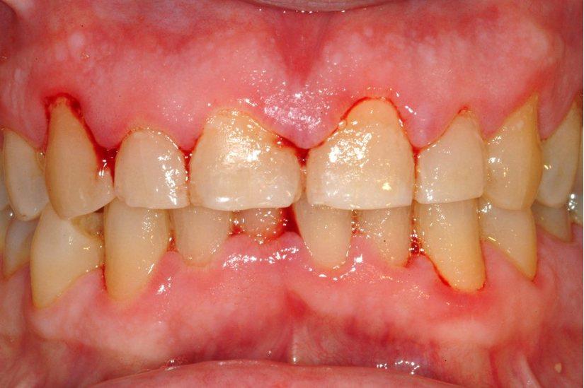 bệnh viêm quanh răng