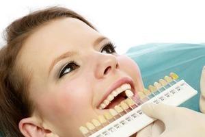 Tẩy trắng răng tại phòng khám sẽ ít tác dụng phụ hơn