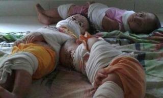 Hàng triệu mẹ bỉm sữa phẫn nộ với loạt ảnh 3 bé bị cô giáo trói tay chân, bịt miệng