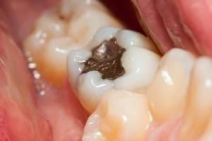 Phương pháp chống sâu răng hiệu quả cho bạn