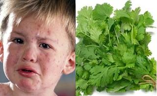 """Mùa thủy đậu sắp hoành hành, mẹ """"bỏ túi"""" ngay cách chữa bằng rau mùi hiệu quả gấp 10 lần thuốc tây"""