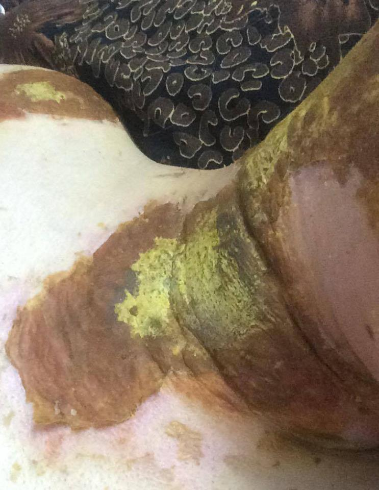 nữ sinh THPT Phan Đình Phùng bị bỏng 1
