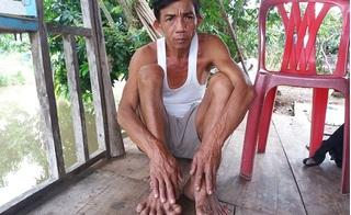 Chuyện lạ về gia đình có tay, chân xòe như rải quạt ở Đồng Tháp