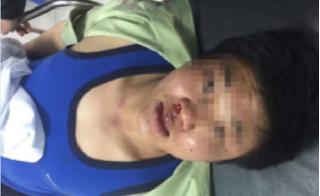 Công an đang điều tra vụ người đàn ông bị hành hung dã man khi nhậu tại nhà một Giám đốc ở Hà Nội