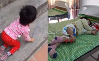 Con gái bị liệt chân phải sau khi điều trị viêm phổi ở Bắc Ninh, bố khẩn cầu làm rõ nguyên nhân