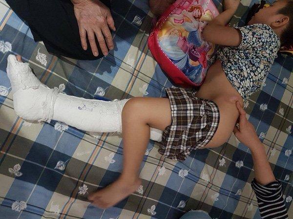 học sinh Trần Quý Kiên bị gãy chân trong sân trường