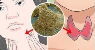 6 loại bệnh ung thư tỷ lệ sống cao và dễ dàng chữa khỏi