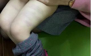 Đuổi việc cô giáo mầm non mới đi dạy 1 tháng đã đánh trẻ bầm tím đùi