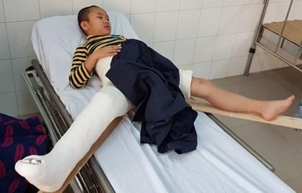 học sinh ngã gãy chân tại trường Nam Trung Yên