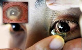 Nguy cơ mù vĩnh viễn vì đeo kính áp tròng làm đẹp