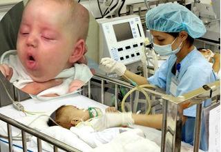 Dấu hiệu nhận biết ho do viêm thanh quản và ho gà gây chết người ở trẻ