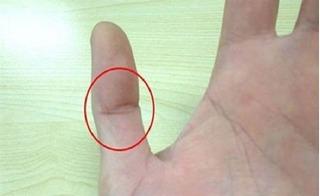 Vân tay ngón cái có dấu hiệu này, cuộc đời bạn định sẵn là may mắn hạnh phúc