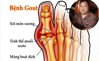 Hàng vạn người đã khỏi hẳn bệnh gout nhờ bài thuốc bí truyền cực đơn giản này