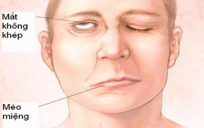Cây kinh giới chữa bệnh trúng gió, méo miệng hiệu quả 2