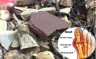 Kỳ lạ chuyện trị gout bằng… mảnh sành khiến 90% bệnh nhân khỏi hoàn toàn