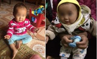 Bé gái 14 tháng tuổi tử vong sau tiêm phòng viêm não Nhật Bản tại Trạm Y tế xã