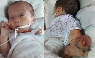 """Bé gái 3 tuần tuổi mắc bệnh """"mọc cục ở sống lưng"""", toàn thân đau đớn"""