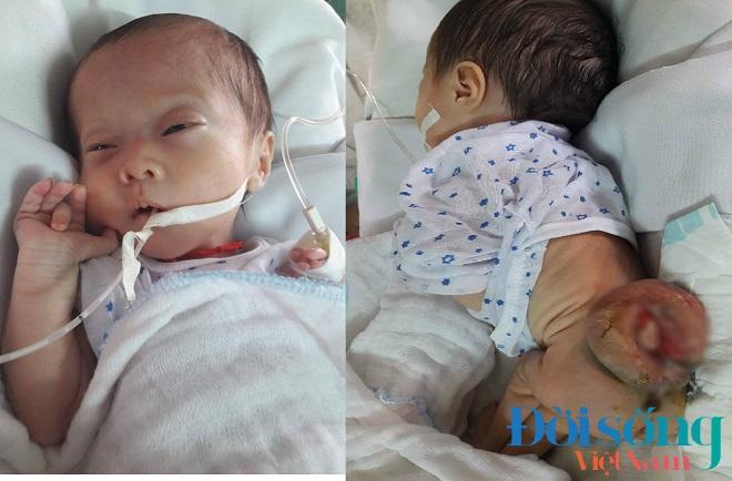 Bé gái 3 tuần tuổi mắc bệnh  1