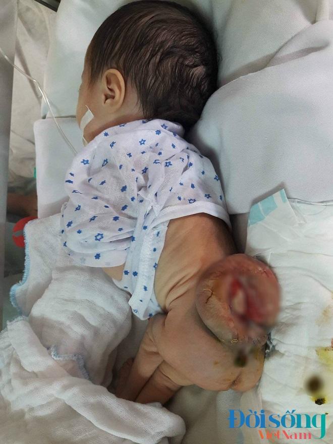 Bé gái 3 tuần tuổi mắc bệnh  2