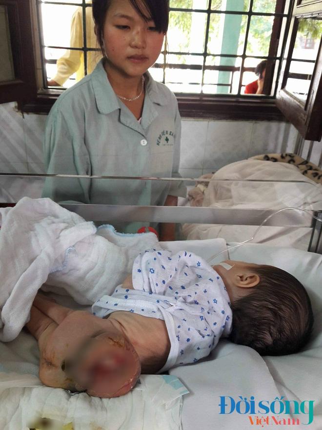 Bé gái 3 tuần tuổi mắc bệnh  6