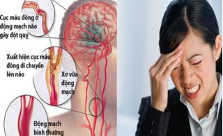 Những cơn đau đầu cảnh báo bệnh nguy hiểm, bạn phải đi khám ngay lập tức