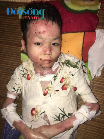 Bé trai bị bệnh ly thượng bì bóng nước 6