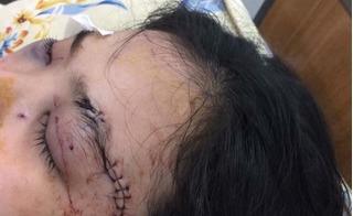 Nữ sinh 2001 bị cắt tai, đánh vỡ giác mạc vì tố giác tội phạm