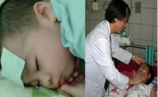 Chuyên gia mách mẹ cách hạ sốt cho trẻ cực nhanh và không lặp lại