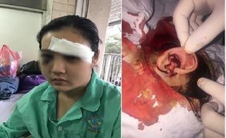 Hãi hùng cảnh 20 thanh niên cắt tai, đánh vỡ giác mạc cô gái sinh năm 2001 vì tố tội phạm