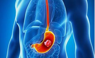 Ung thư dạ dày cực kỳ đau đớn, bạn nhất định phải biết 6 dấu hiệu cảnh báo bệnh nguy hiểm này
