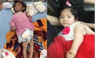 Bé gái Lào Cai 14 tháng tuổi nặng 3,5kg thay đổi thần kỳ nhờ mẹ nuôi 9X