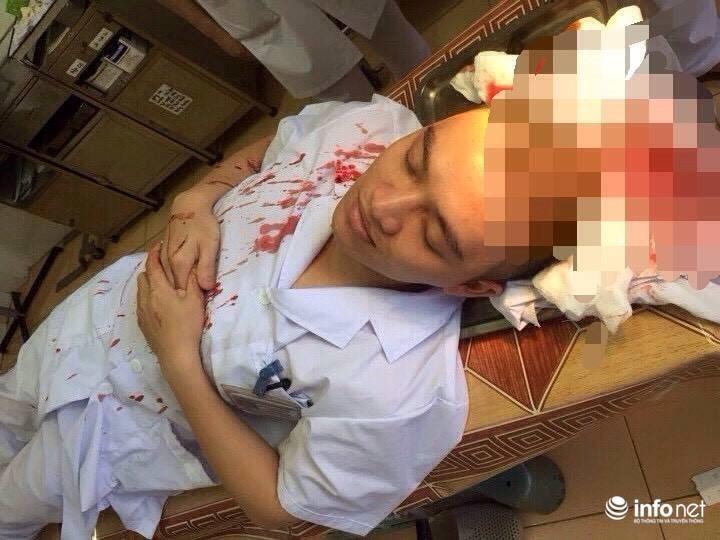 Bác sĩ bị hành hung phải khâu 7 mũi trên đầu