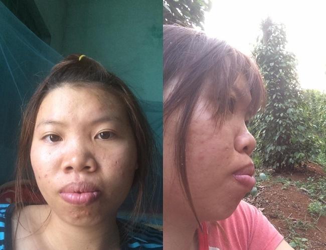mẹ đơn thân phẫu thuật thẩm mỹ1