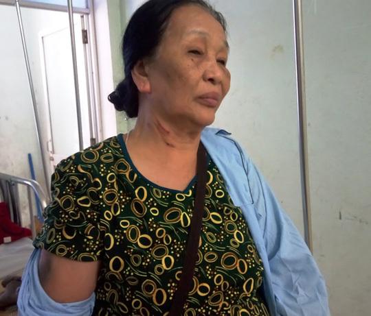 Vợ chồng cựu binh bị đánh